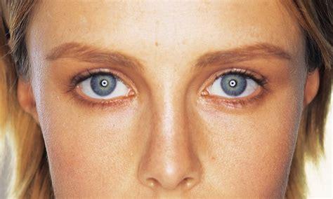 australian dream acne picture 14
