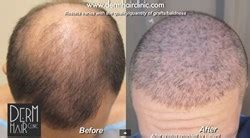 correct hair thinning in women picture 10