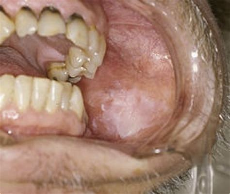 benign hyperplasia of the tongue smoking picture 7