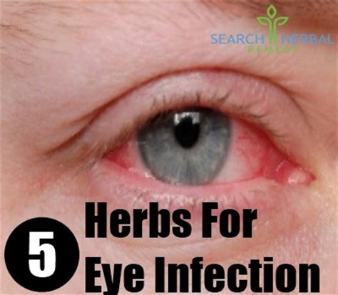 chinese herb for eye infection picture 2