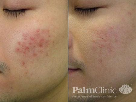 fraxel for acne scars picture 3