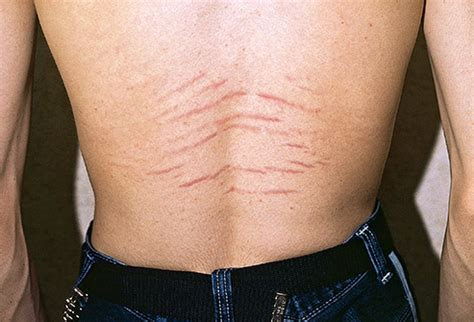do man think stretch mark are ugly picture 4