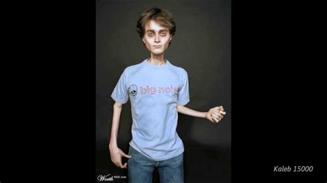 anorexic with loose skin picture 3