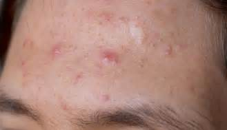 what causes acne picture 9