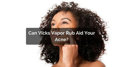 can vapor rub help with acne picture 7