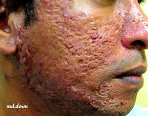 at what age does acne resolve picture 11