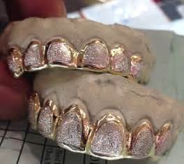 diamond teeth shops picture 1