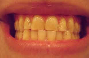 and your teeth picture 3