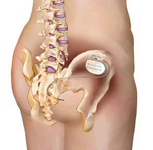 bladder stimulator interstim picture 3