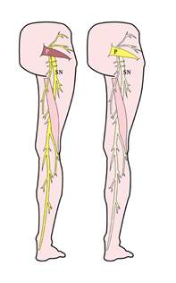 sciatic nerve pain relief picture 15