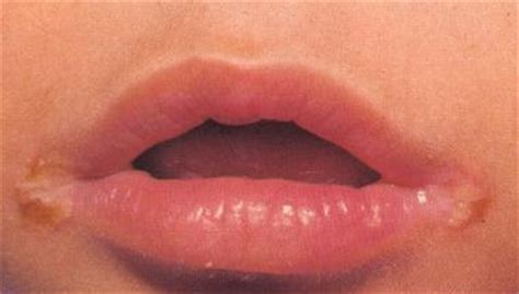 yeast & bacteria infection on corner of lip,should picture 11