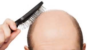 hair loss picture 6
