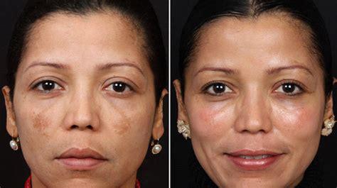 cosmo skin glutathione testimonials picture 1
