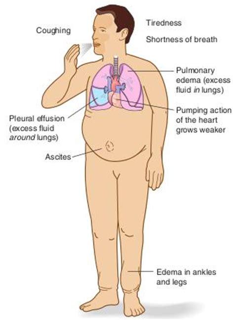 avandia + liver failure picture 7