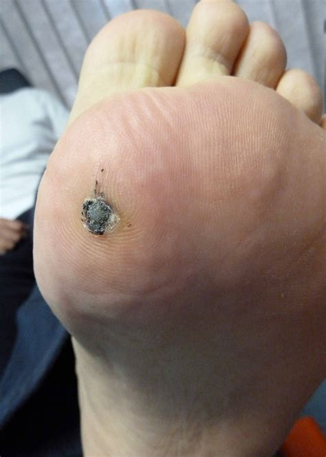 a picture of plantar warts picture 7