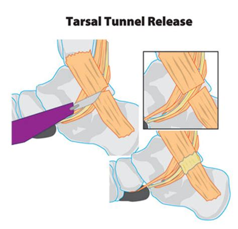 can tarcel tunnel syndrome give u pain in picture 7