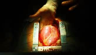 Prostate procedures picture 14