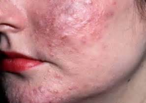 rosacea and mites picture 11