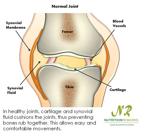 cervical joint fluid infection picture 18