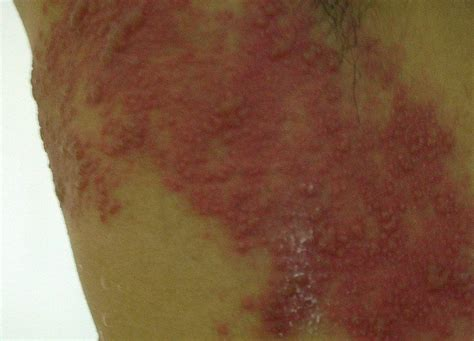 rx for herpes zoster picture 2