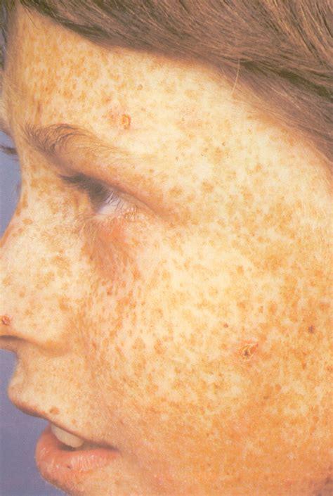 aids skin rash picture 3