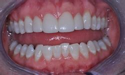 fort worth tooth whitening picture 19