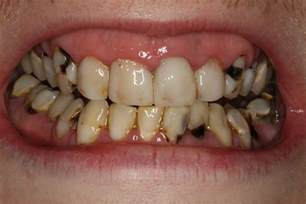ruin teeth picture 1