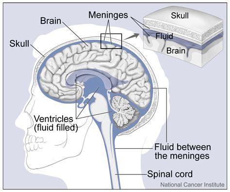 left side of brain bacterial meningitis caused hole picture 4
