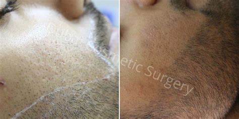 cosmetic surgery hair picture 6