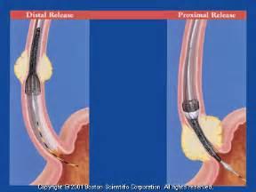 gastrointestinal endoscopy picture 6