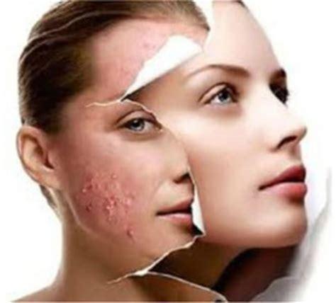acne medicine picture 18