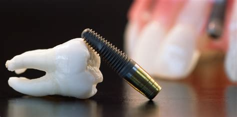 do h implants fail picture 15