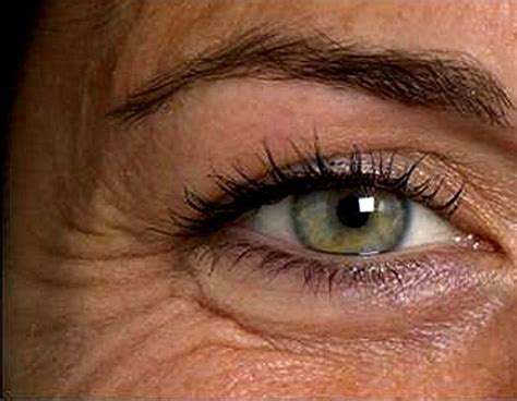 aging eyes picture 1