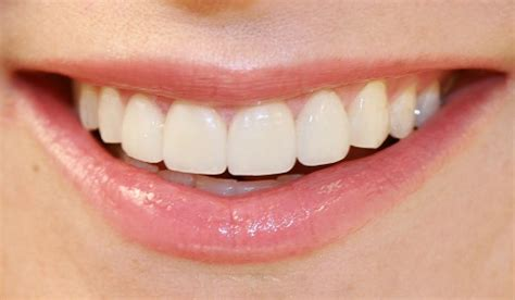 clear teeth picture 14