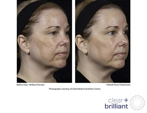 treatments used with the obagi nu derm skin picture 8