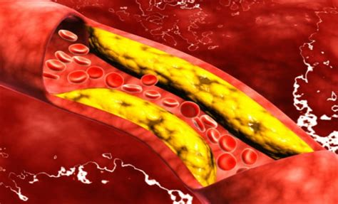 pagkain iwas cholesterol picture 6