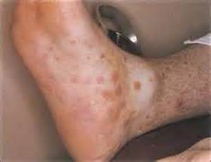 increased pulse with genital herpes outbreak picture 22
