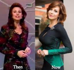breast implants after aging picture 10