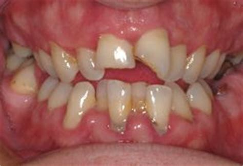 covering for jagged teeth picture 2