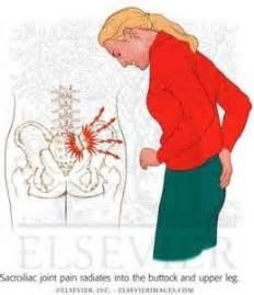 bursitis picture 2