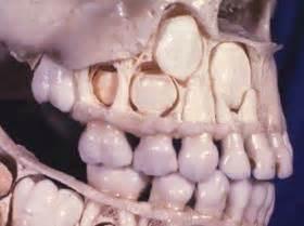 eye teeth picture 2
