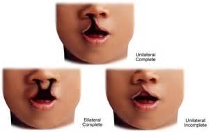 a description of cleft lip picture 11