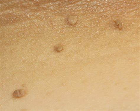 blood root skin tags picture 1