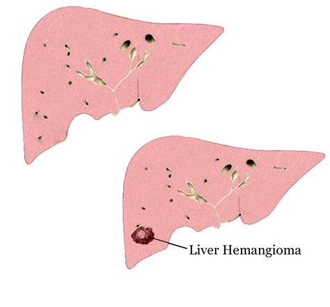 natural treatment for liver hemangioma picture 3