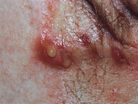 acne in groin area women picture 5