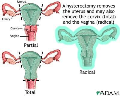 joint health after hysterectomy picture 2
