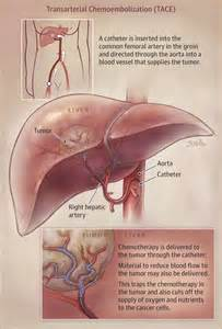 wiccan ways for treating the liver picture 13