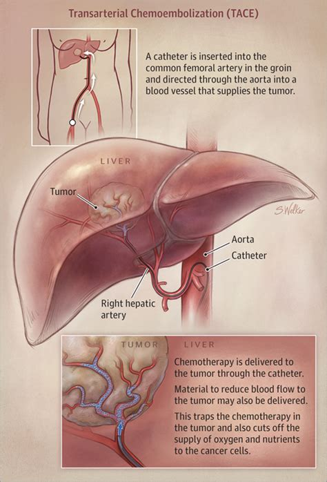 hepatic vein liver cancer chemo picture 11