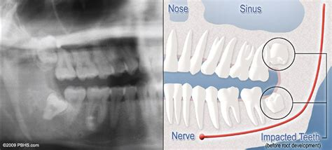 correcting impacted teeth picture 7