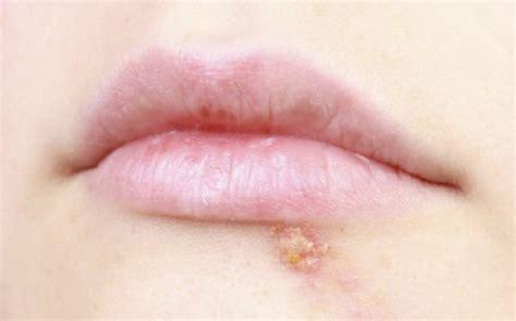 tratament naturist herpes picture 2
